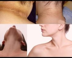 HOW TO GET RID OF DARK NECK AT HOME WITHEN A FEW MINTUS